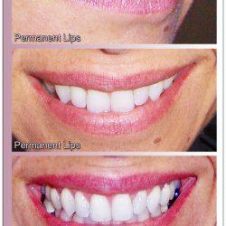 lips37