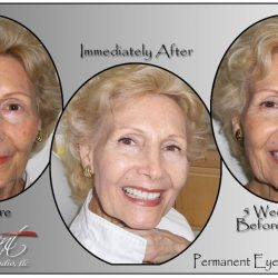 PROGRESSION OF PERMANENT EYELINER SHOWING THE SOFTENING THAT OCCURS DURING THE HEALING PROCESS.