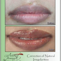 MCA AND PERMANENT MAKEUP USED TO CORRECT A NATURAL BLEMISH