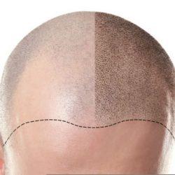 SMP - Scalp Micropigmentation